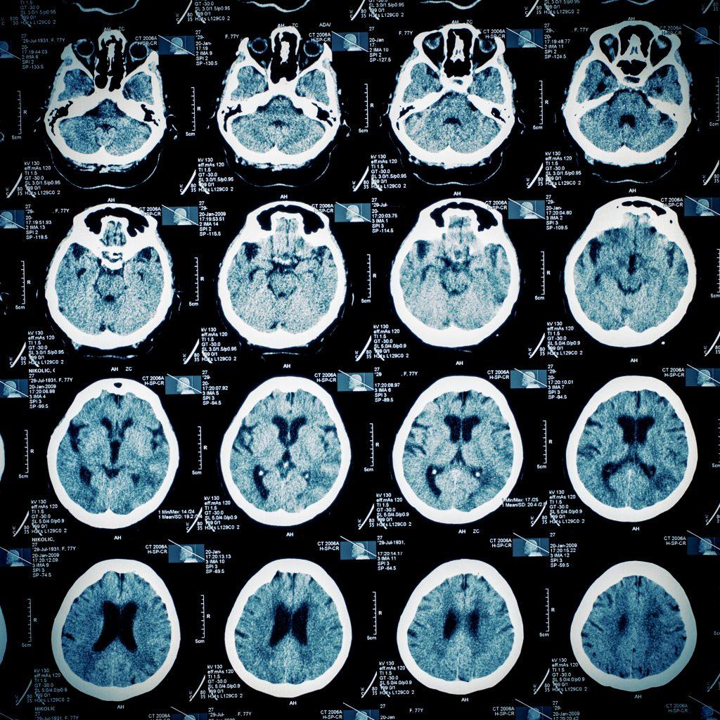 MRI scan of a human brain